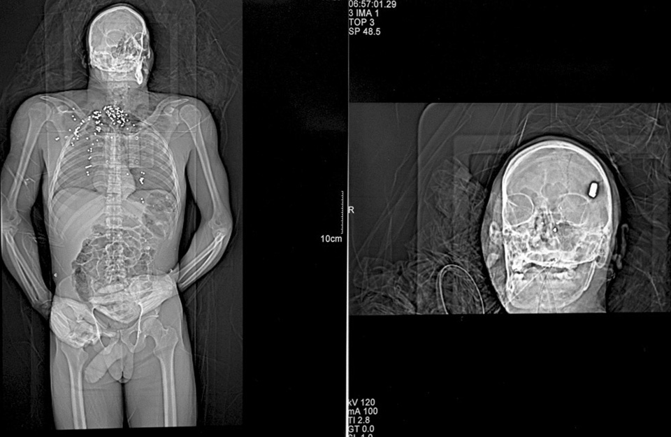 X-ray of a gunshot victim: shotgun to the chest, bullet to the head. Detroit, Michigan.