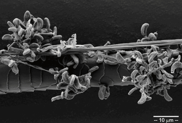 Scanning electron micrograph of a bat hair colonized by Geomyces destructans