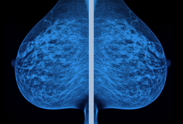 what if everything your doctors told you about breast