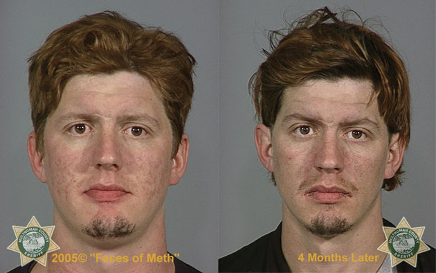 horrifying before and after photos of meth users mother jones. Black Bedroom Furniture Sets. Home Design Ideas