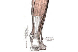 levaquin tendon rupture frequency