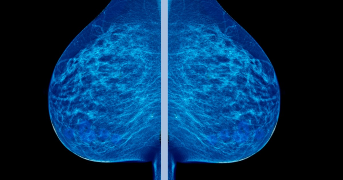 Study Raises Doubts On Mammograms Arkansasonline Com >> What If Everything Your Doctors Told You About Breast Cancer