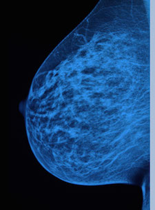 "Read our recent in-depth investigation: ""What If Everything Your Doctor Told You About Breast Cancer Was Wrong?"""