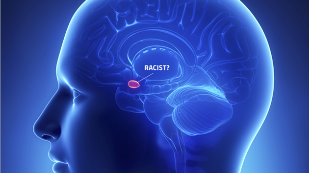 The science of your racist brain